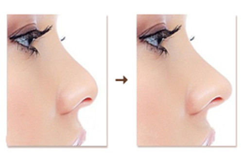鼻部整形.jpg